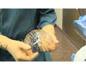 schaedel-implantat.jpg